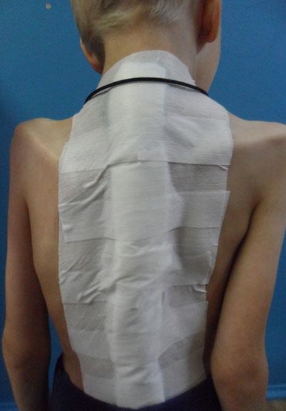 Детский сколиоз . После операции. Рис.1